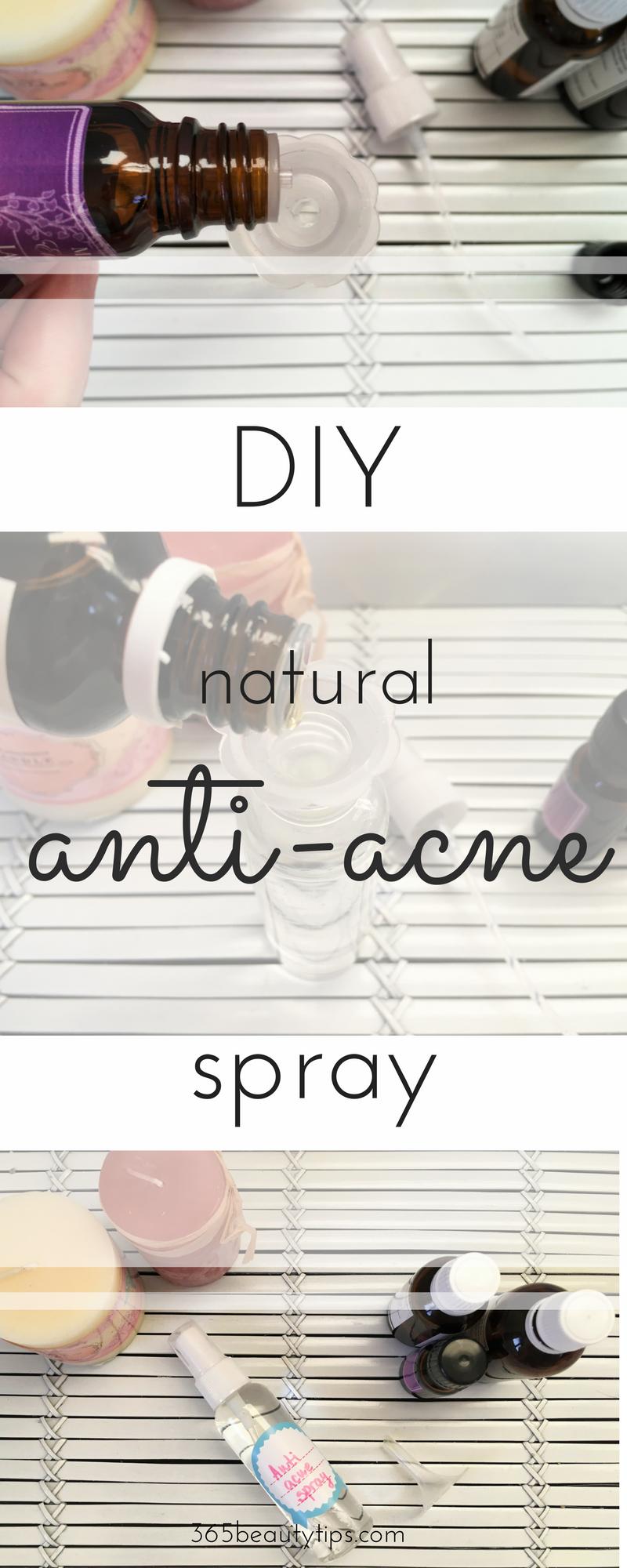 diy-anti-acne-spray-365-beauty-tips